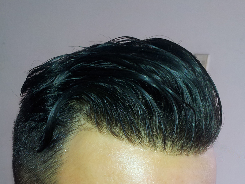lace hair system baldness solution